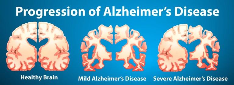 Alzheimer's disease supplement