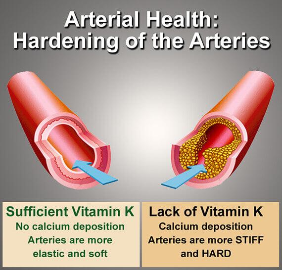 Vitamin K2 vascular calcification